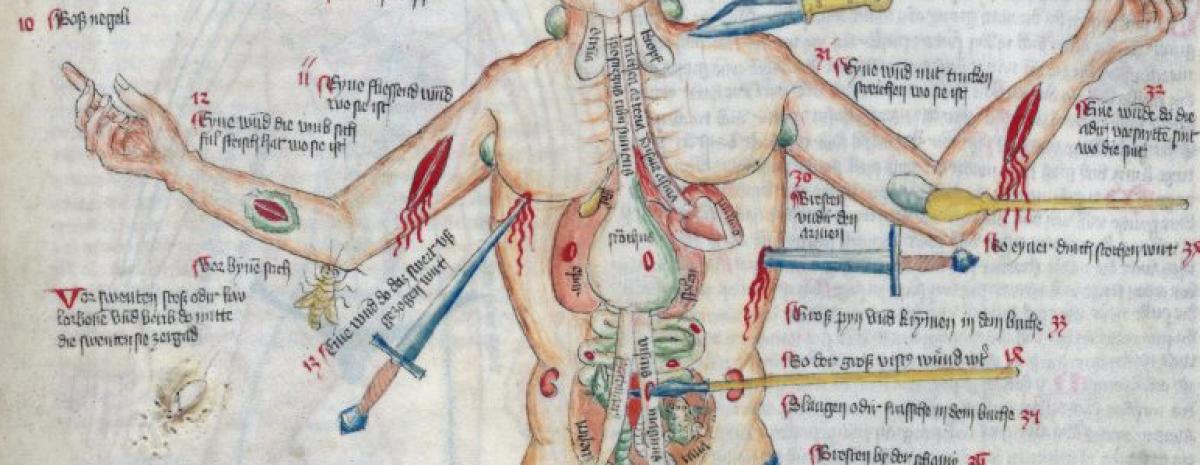 Średniowieczny grafik płakał, jak rysował te rany, slipy orlonosego i śmierć xd